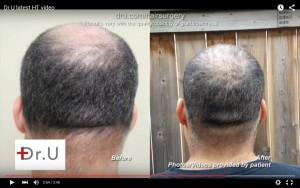Before and after crown restoration by chest hair transplants