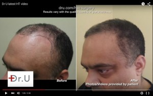 Before and after hairline restoration by Chest hair to head transplant
