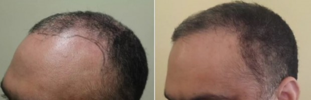 hair transplant procedures. platelet rich plasma can be an alternative for hair restoration. Before and after hairline restoration by chest hair transplants