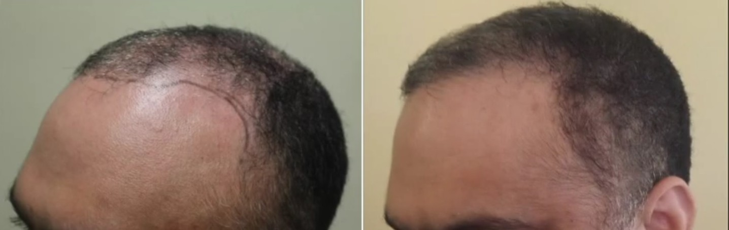 platelet rich plasma can be an alternative for hair restoration. Before and after hairline restoration by chest hair transplants