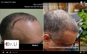 Results in the right hairline and temples point from head, beard and chest hair transplant