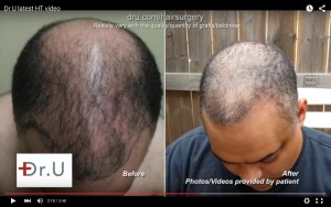 Results in the crown and hairline from head, beard and chest hair transplant