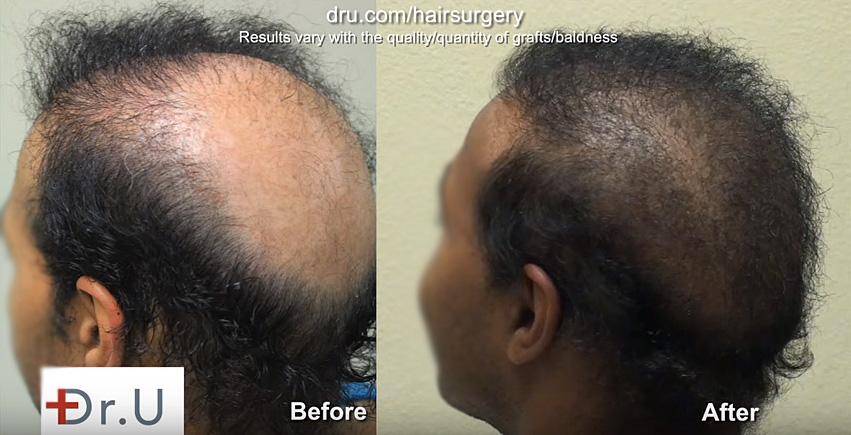 Body Hair Transplant Repair In African American