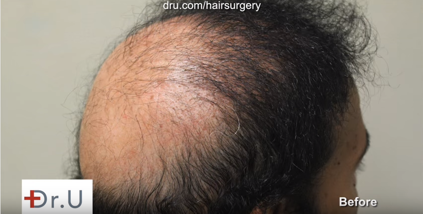 Severe baldness and donor depletion repaired using UGraft FUE and sacl pigmentation