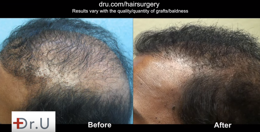 Hair loss forum before and after surgery results of newly transformed temples and side scar covered by grafts urmus Gallery