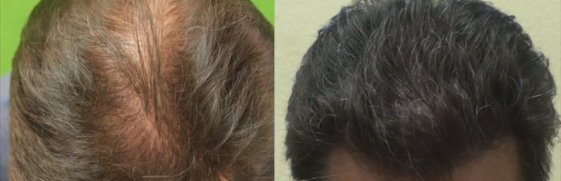 FUE Hairline Transplant by Dr. U is successful