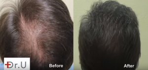 FUE Hairline Transplant and Increasing Density Using Nape and Beard Hair by UGraft
