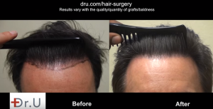 Natural looking hairline can be combed after UGraft FUE Hairline Transplant using nape hair