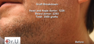 Beard, Head, and Nape donor area yield a successful graft for the FUE Hairline Transplant.