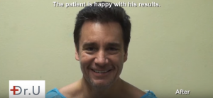 The happy patient is fully healed with a new hairline and hair density after a FUE Hairline Transplant.