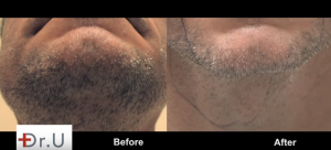Beard hair transplant completely healed with minimal pain after FUE Hairline Transplant