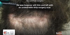 The surgery scar left by a previous hairline surgery was covered up by Dr. U