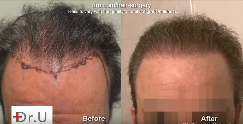 Before and after results of undetectable hair transplantation