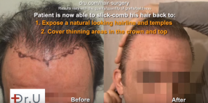 Undetectable hairline transplant before and after