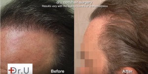 Before and after side view of patient's temples after UGraft surgery undetectable
