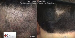 After a year of Face Framing using FUE hairline transplant patient has no significant scarring.