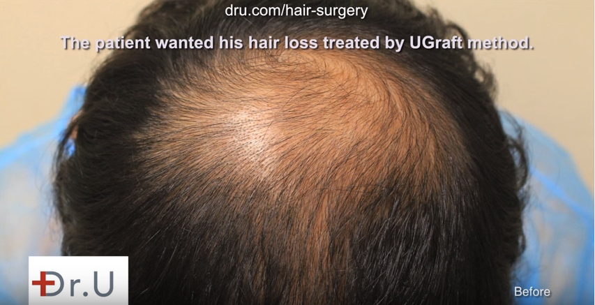 Face Framing using FUE hair transplant featured image