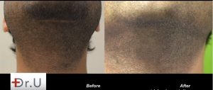 White dotting covered up using trichopigmentation in Face Framing using FUE hairline transplant