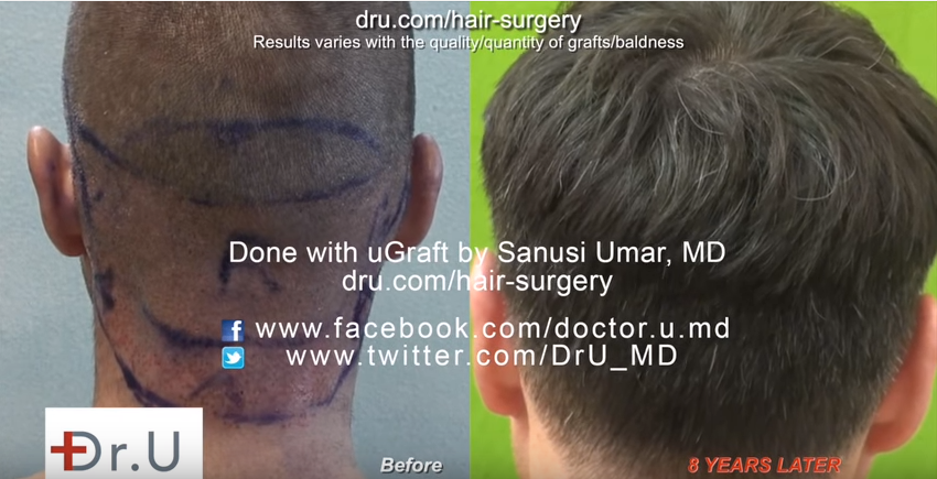 UGraft advanced follicular unit extraction used to extract nape follicles from the nape area (marked A)