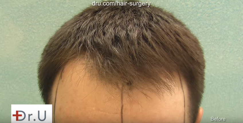 8 years before fue hair transplant