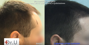 FUE Hair Transplants are forever? Patient needs follow up surgery 8 years later.