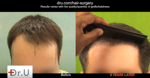 FUE Hair Transplants are forever? It is possible that the patient will needed further surgery later.