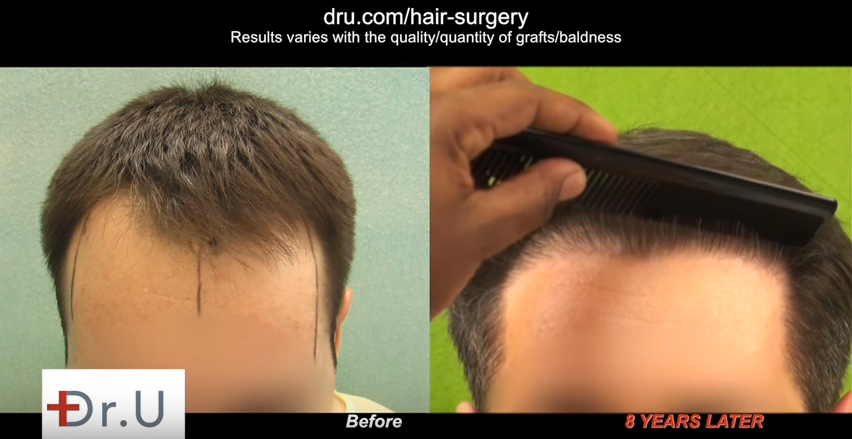 UGraft advanced FUE hair transplantation using nape grafts for the creation of an aggressive but soft and natural looking hairline in a younger patient