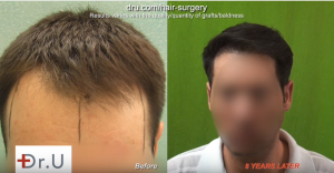 One may think FUE Hairline Transplants are forever, but further surgery may be needed.
