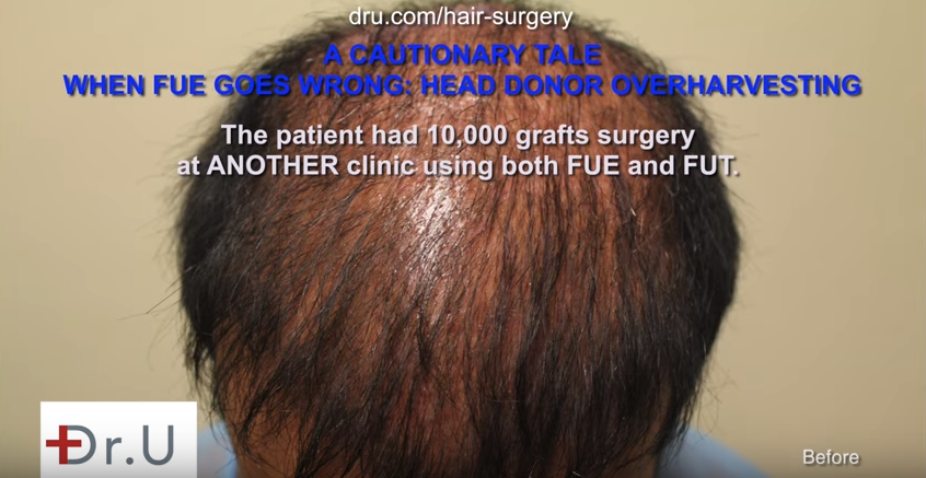 The results of bad FUE hair transplant planning after 10,000 grafts surgery at another clinic