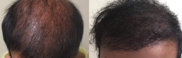 Bad FUE hair transplant planning corrected by Dr. U