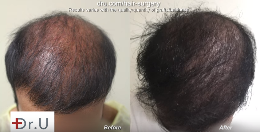 Bad fue hair transplant planning repair results Crown and overall density improved by Dr. U at just 5 months