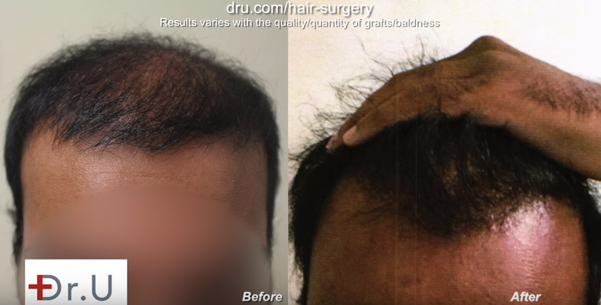 Corrected bad FUE hair transplant planning by Dr. U