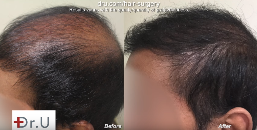 Temple and hairline improved by Dr. U, before and after bad fue hair transplant planning repair