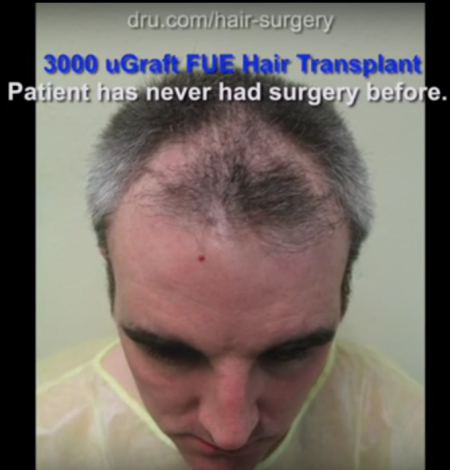 Hair loss patient receives 3,000 UGraft transplant for fuller coverage