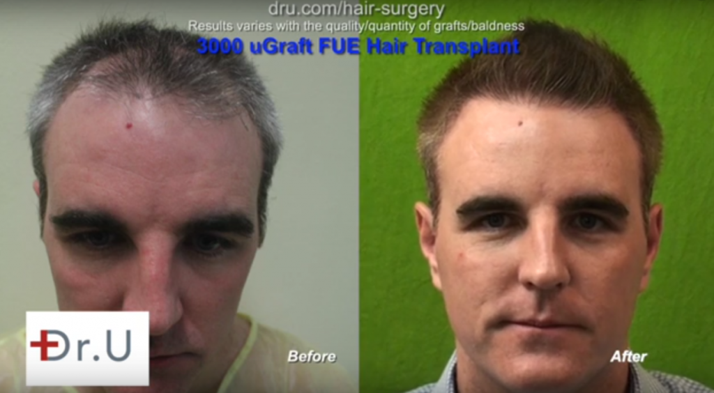 UGraft Advanced Follicular Unit Extraction for Body Hair