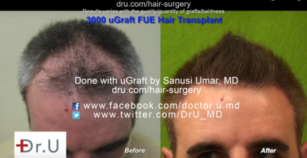 Los Angeles UGraft advanced follicular unit extraction using 3000 head hair donor grafts only - frontal scalp view before and after