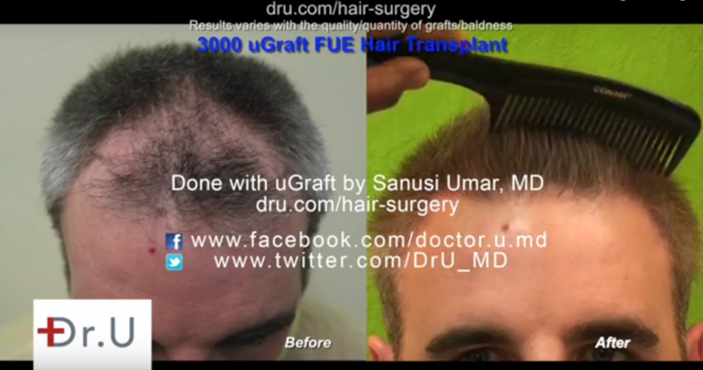 patient showing a very natural looking hairline following his UGraft fue hair restoration using only head hair