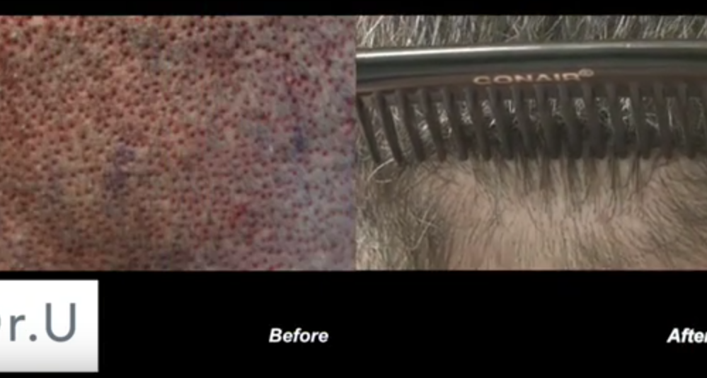 UGraft FUE hair transplant wounds before and after