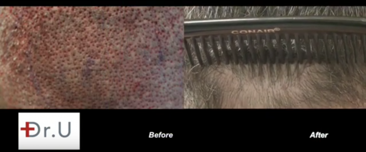 Patient experiences successful new hairlines with use of nape and head hair.