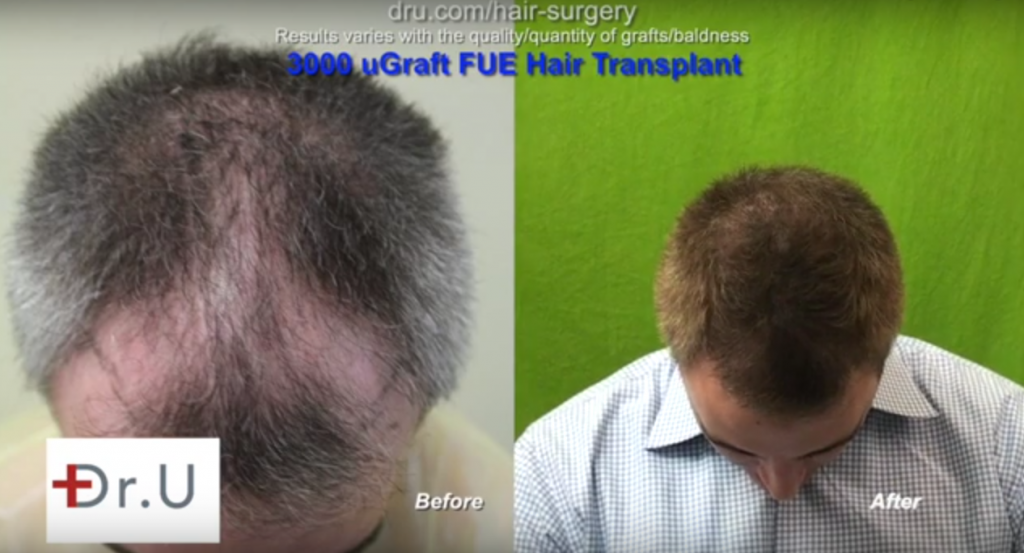 patient showing a fully restored top following his UGraft follicular unit extraction using only head hair