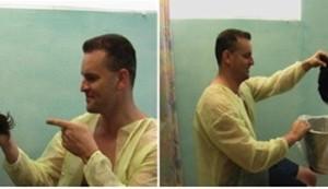 UGraft body hair transplant for NW 6 Repair using 19500 grafts