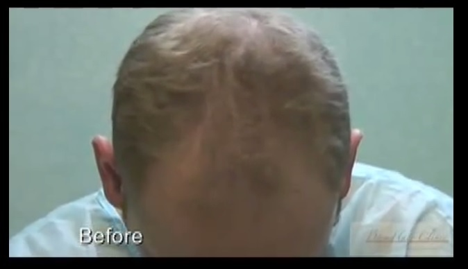 Before Patient's FUE Transplant With 3500 Grafts