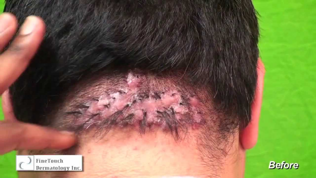 Natural Treatment Of Acne Keloidalis Nuchae Can It Be Done