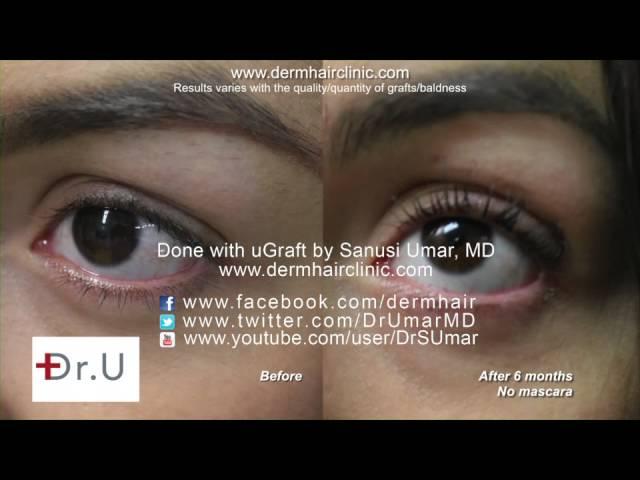 Ugraft Eyelash Hair Transplant In A Premier Los Angeles Clinic