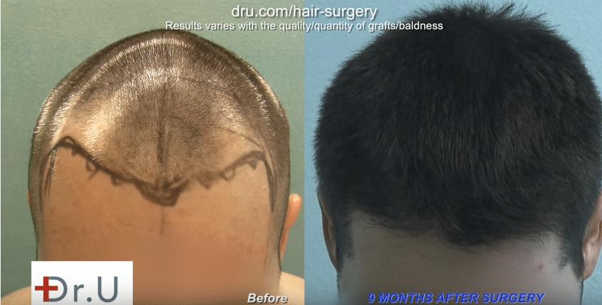 DermHair Clinic Los Angeles Advanced FUE Hair Restoration Clinic