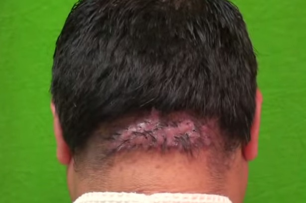 Patient With AKN and Doll Tufted Lesion Before Surgery