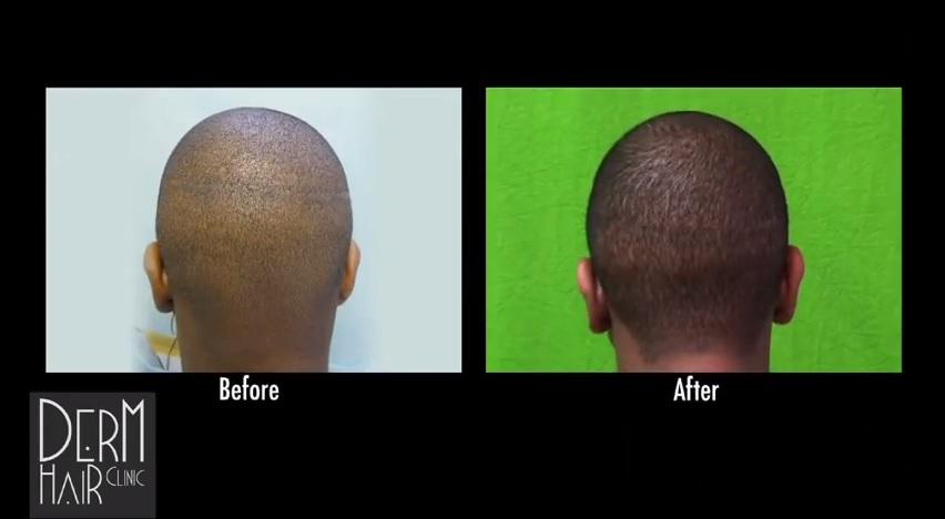 African American Patient- FUE Strip Scar Repair