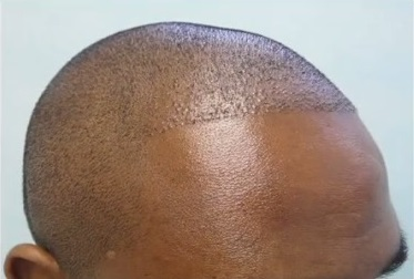 African American Patient Before His FUE Surgery