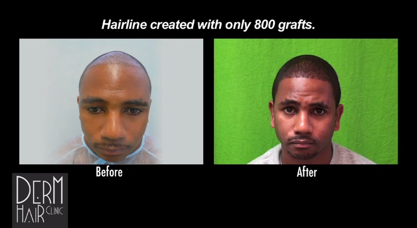 Front View- African American Hair Transplant Results