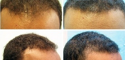 Hairline Restoration For African American Patient